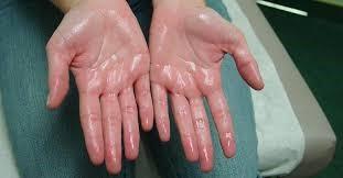 KERINGAT BERLEBIHAN (Hyperhidrosis)